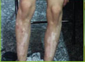 癜风、白化病、汗斑、花斑癣、白色糠诊、等等.腿上有小白点不一定