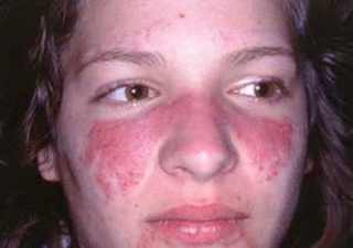 面部出现蝶形紫红色斑块是怎么了