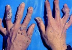 青岛患者咨询:不良的卫生习惯会患上寻常疣吗的相关图片