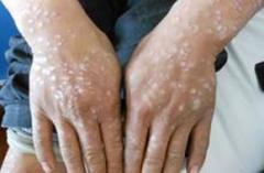 湿疹症状与牛皮癣症状的区别