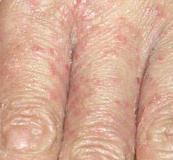 青岛患者咨询:真菌引起的手癣老年人容易得吗的相关图片