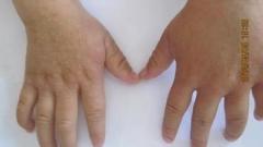 苔癣样疹都有哪些典型症状