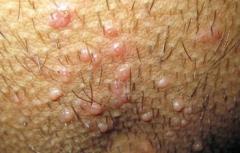 临沂皮肤病医院专家介绍为什么会长传染性软疣的相关图片