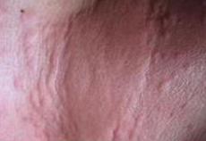 【图】过敏性荨麻疹图片的相关图片