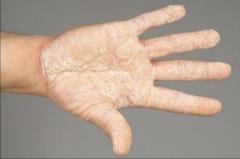 放射性皮炎有哪些表现?该怎样有