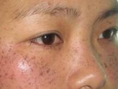 黄褐斑的危害有哪些你清楚吗