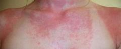 多形性日光疹怎么治疗的相关图片