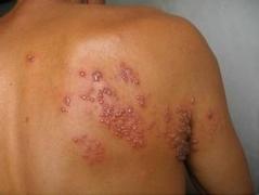 带状疱疹原因