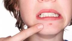 下巴长痘的原因