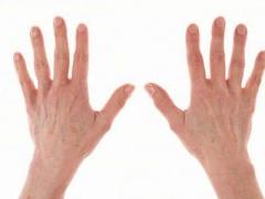 急性湿疹原因及症状表现