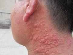 治疗多形日光疹的方法有哪些