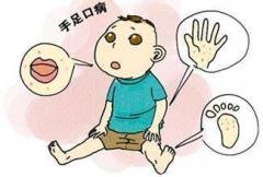 得了手足口病 日常怎么护理的相关图片