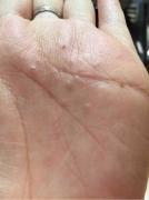 手上长水泡是汗疱疹的表现吗