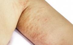 形成急性湿疹的原因有哪些