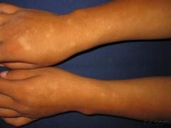什么是多形日光疹 有哪些症状的相关图片