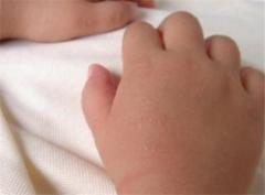 预防痱子 让宝宝夏季无烦恼