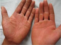 关于手癣的基本常识的相关图片