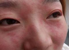 面部皮肤过敏原因的有哪些