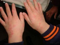 出现多形红斑该怎么护理的相关图片
