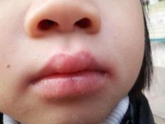 护理口周皮炎的四个细节