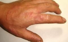 体癣对患者的�τ心男┑南喙赝计�