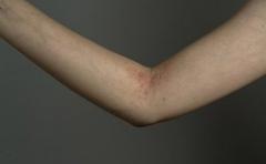 预防夏季皮炎的四个方法