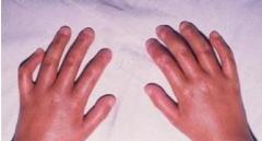 结节性红斑的�Φ南喙赝计�