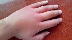 血管性水肿是什么 有哪些表现的相关图片