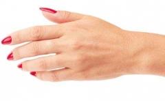 改善手癣 做好护理很重要的相关图片