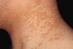 花斑糠疹的症状表现