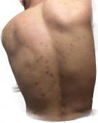 背部长痘的原因有哪些