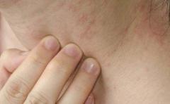 夏季皮炎日常怎么护理