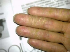 手经常脱皮有哪些原因