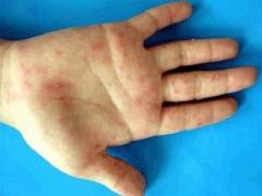 得了手足口病该怎么护理的相关图片