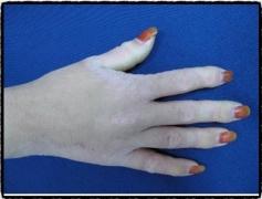 改善异位性皮炎的护理方法