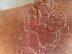 急性湿疹的症状及特点