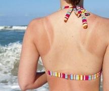 多形性日光疹的日常注意的相关图片