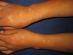 教你认识多形日光疹的症状的相关图片