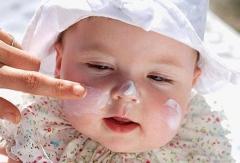怎么预防宝宝长痱子的相关图片