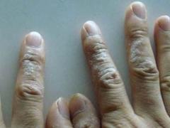 急性湿疹的突发原因有什么