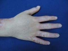 小儿异位性皮炎有哪些症状