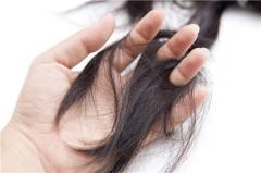 改善脱发的中医小偏方的相关图片