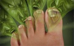 女性日常如何护理脚臭