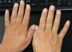 改善手癣的日常护理方法