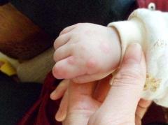 冬季如何有效预防手足口病的相关图片