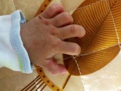冬季如何预防手足口病的相关图片