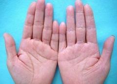 治疗手足皲裂的多种偏方