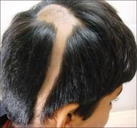 斑秃的病因有哪些