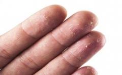 引发手脱皮的因素有哪些