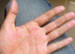 改善手脱皮 做好保养很重要